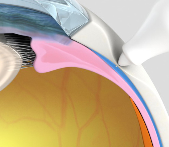 Suprachoroidal injection of OTX-AFS (image)